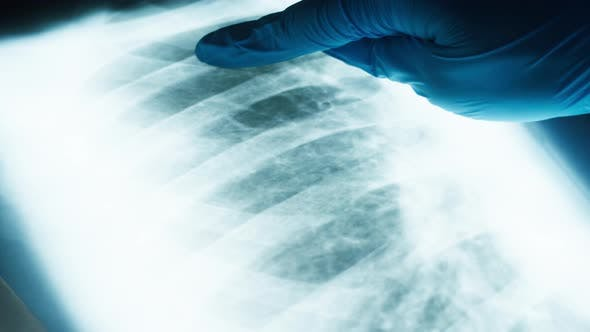 Studying Xray Image of Human Chest Closeup Doctor Checking Fluorography of Patient Lungs Checkup