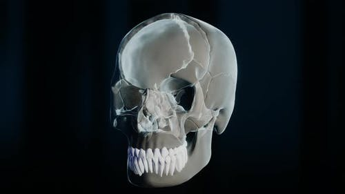 Bad Molar Tooth in Skeleton on Black Background
