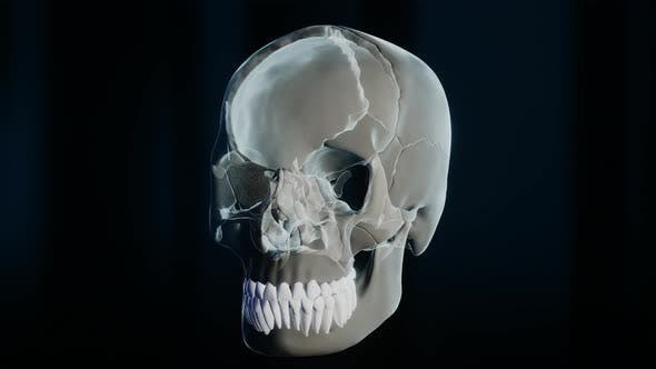 Thumbnail for Bad Molar Tooth in Skeleton on Black Background