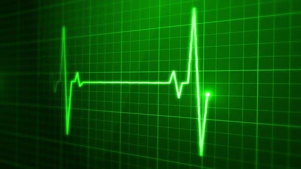 Thumbnail for Digital EKG Pulse Screen Loop