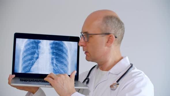 Praktiker Arzt zeigt CT Scan Lunge auf Laptop-Bildschirm während Online-Konsultation. Männlicher Arzt