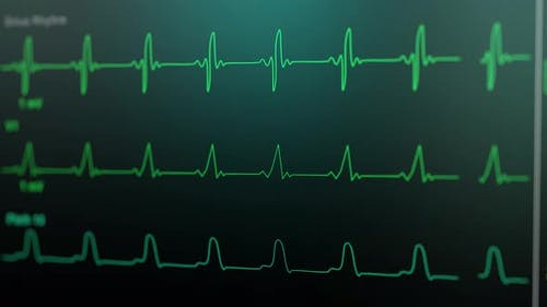 Patient Monitor Displays Vital Signs ECG Electrocardiogram EKG, Oxygen Saturation SPO2 and