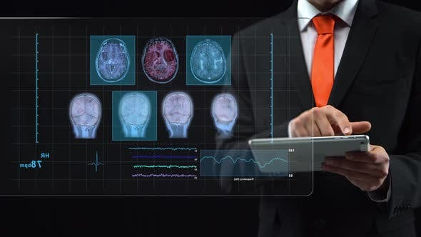 Thumbnail for Man Working at Technological Medical Digital Holographic Monitor, a Human Hologram.