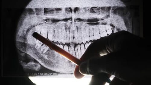 Dental XRay of Jaw with Teeth