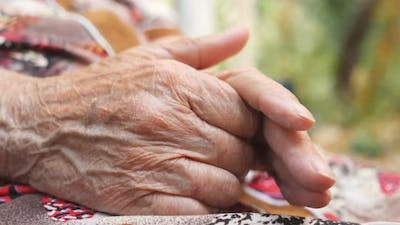 Wrinkled Arms of Senior Woman Outside