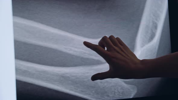 Thumbnail for Traumatologist Touches a Touch Screen with a X-ray of the Bone
