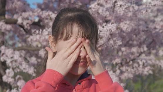 Allergy in the Eyes