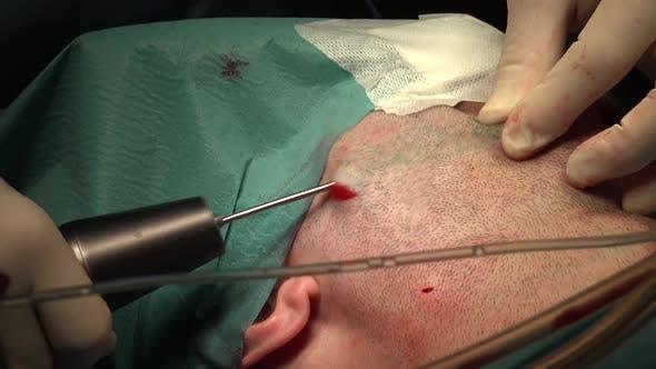 Facial Liposuction 8