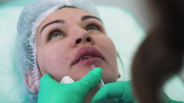 Specialist Does Injection for Lips Augmentation To Woman