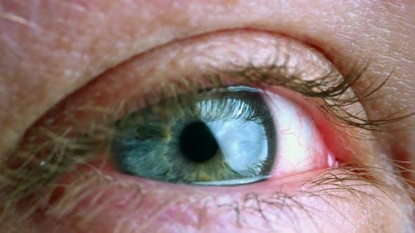 Thumbnail for Expanding Human Eye Iris. Caucasian Male
