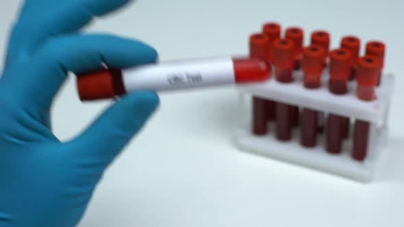 Thumbnail for CBC Test, Doctor Showing Blood Sample in Tube, Lab Research, Health Check-Up