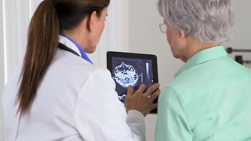 Senior Arzt mit Tablette, um Gehirn-Scan zu erklären