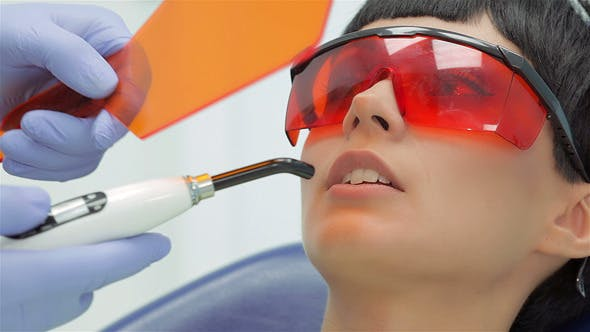 Thumbnail for Dentist Shines Ultraviolet Photopolymer Seal