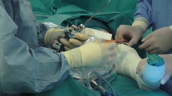 Thumbnail for Camera And Light Sources Arthroscopy