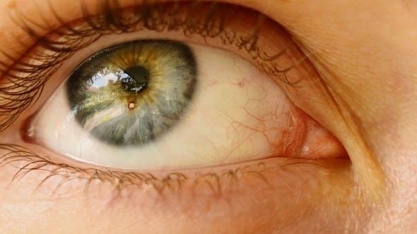 Thumbnail for Woman Eye