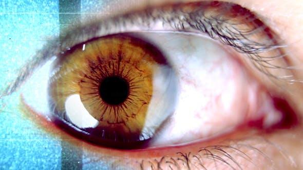 Thumbnail for Eye Error 00