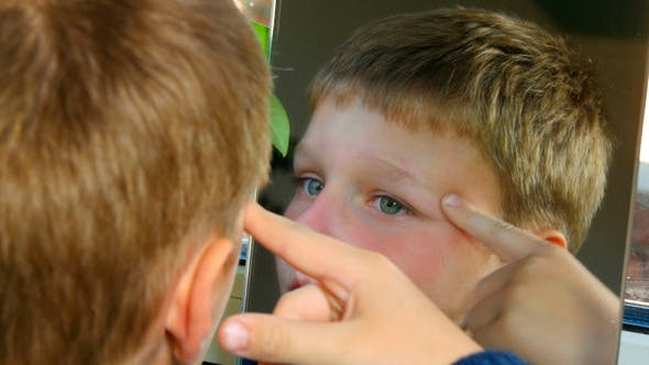 Thumbnail for Boy Looking Scar On His Face