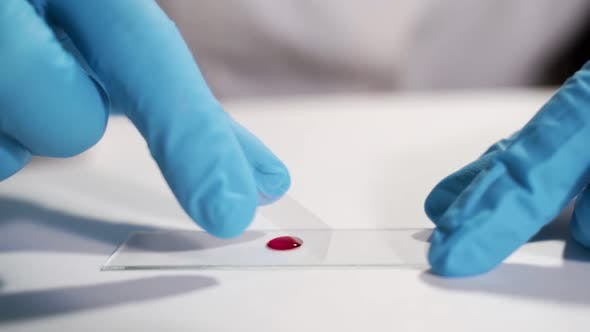 A Close-up Shot Is a Blood Test Procedure in a Laboratory. Concept - Laboratory Tests, Blood Test