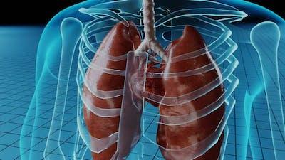 Heart Damage Medical Representation