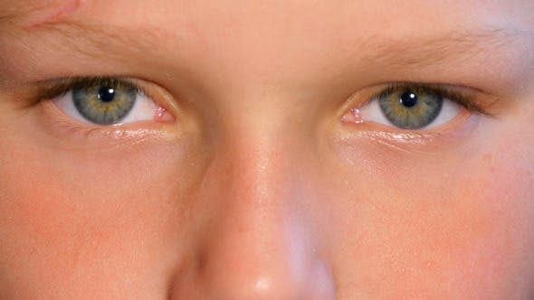 Blinking  Eyes Of Child