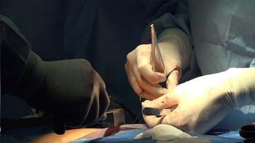 Hände des Chirurgen und medizinische Handschuhe