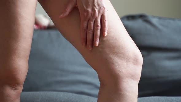 Krampfadern Nahaufnahme Bein