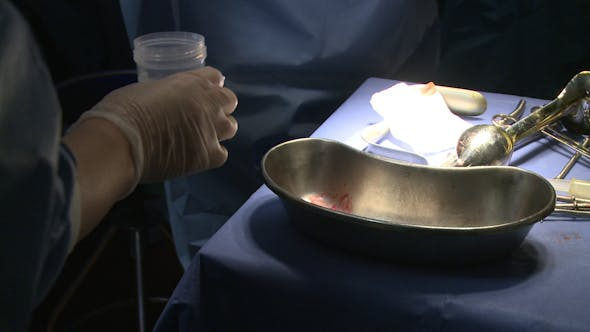 Thumbnail for Robotic Removal Of The Uterus (2 Of 15)