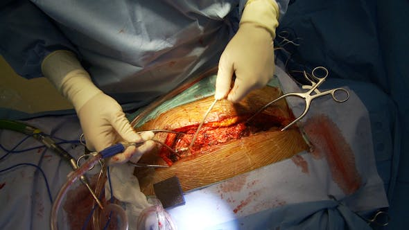 Thumbnail for Spinal Surgical Procedure (1 Of 3)