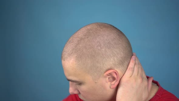 Thumbnail for The Bald Young Man Insolently Shaves His Head. A Man Cuts His Hair Using a Hairdressing Machine