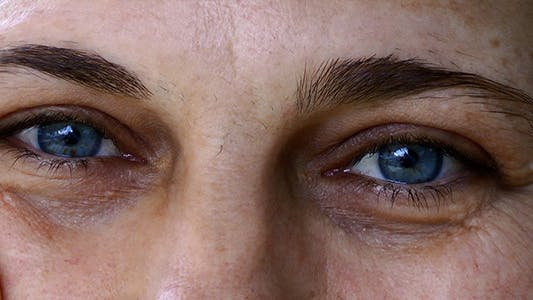 Thumbnail for Blue Eyes
