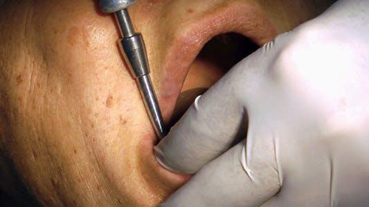 In Dentist