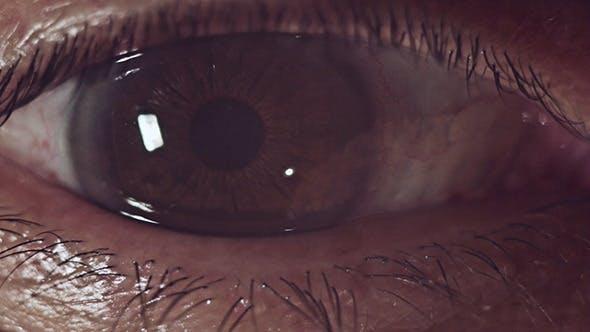 Thumbnail for Man's Eye