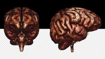Brain - Bloody