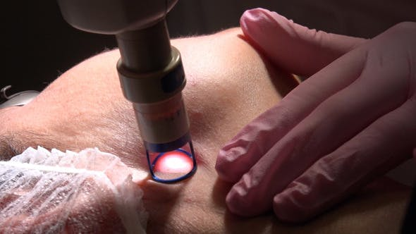 Thumbnail for Laser Therapy for Face and Body Contouring 2