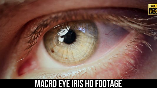 Thumbnail for Eye Iris