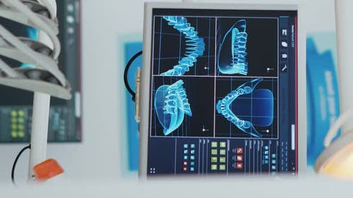 Vertical Video Close Up of Medical Stomatology Display with Teeth x Ray Images on It
