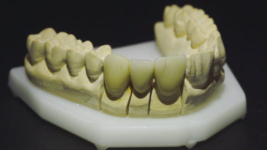 Thumbnail for Overview Of Dentures