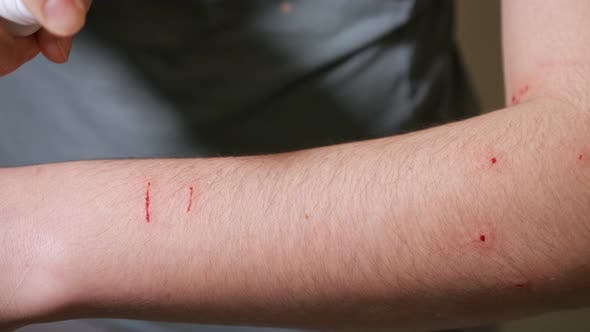 Woman Handles Scratches and Bites on Her Arm