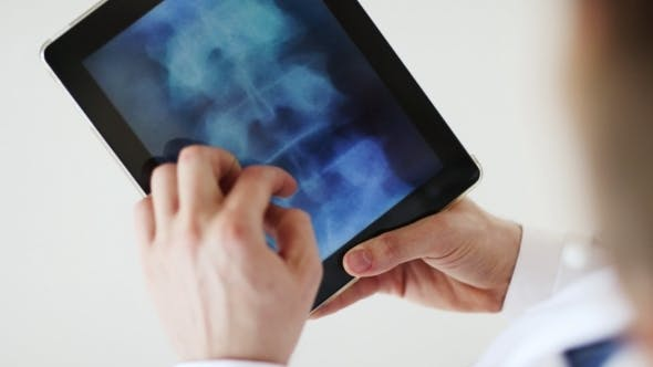 Thumbnail for Doctor With X-ray Scan On Tablet Pc