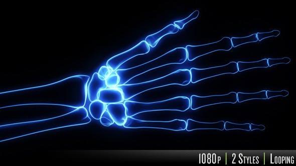 Thumbnail for Bones X-Ray of Human Hand
