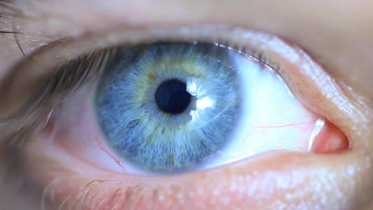 Thumbnail for Blue Eye