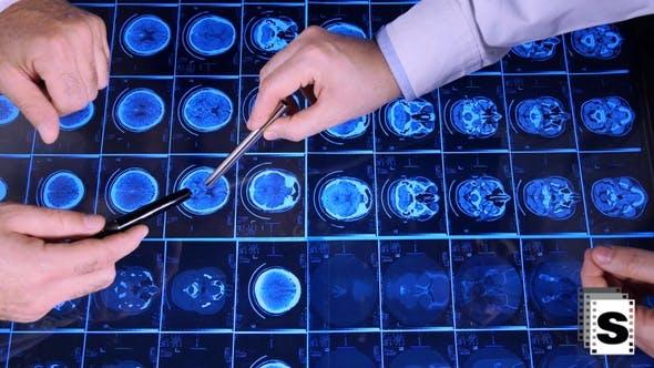 Thumbnail for MRI Analysis