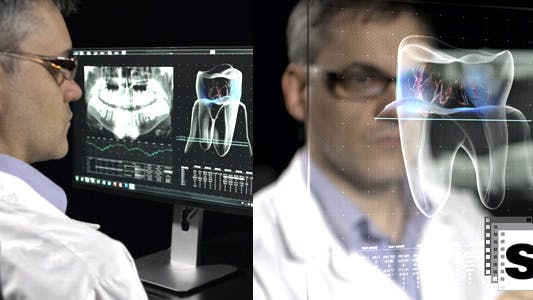 Thumbnail for Dentist Analyzing Xray