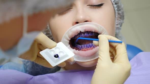 Professional Dental Hygiene Procedure in Dentistry