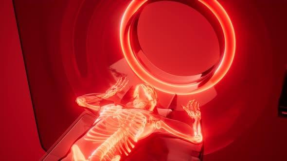 Thumbnail for MRI Examination Medical Scan Footage