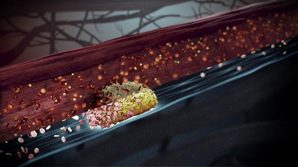 Thumbnail for Cholesterol Buildup Clogging Artery