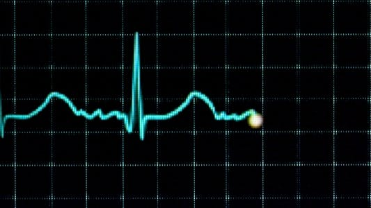 Thumbnail for Electrocardiogram