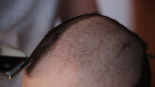 Guy Shave Their Heads Shaver