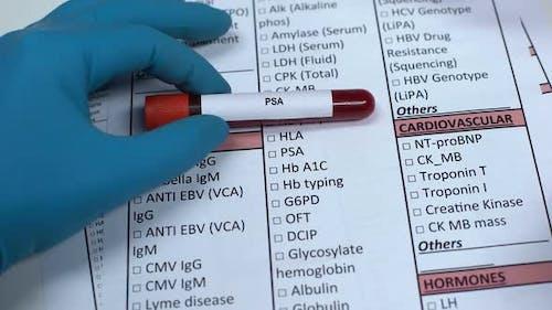 PSA, Doctor Checking Antigene Name in Lab Blank, Showing Blood Sample in Tube