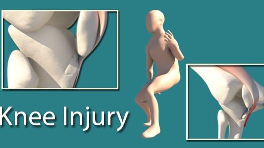 Thumbnail for Knee Injury